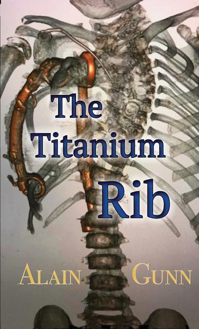 The Titanium Rib